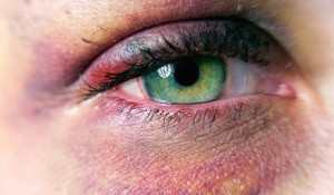 Home Remedies for Black Eye