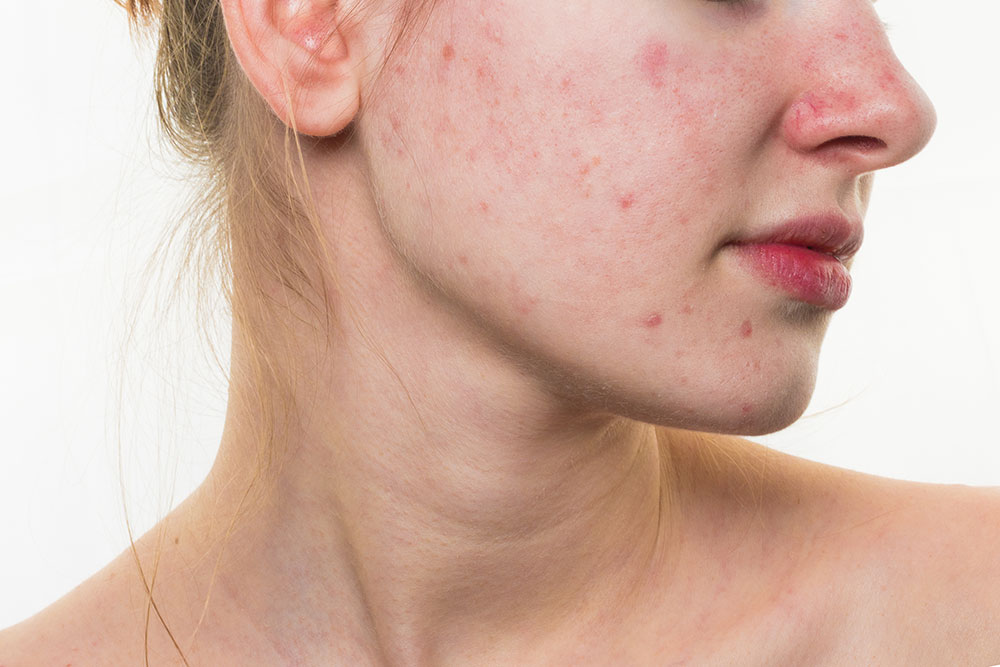 How to Remove Acne Scars or Holes Caused by Pimples